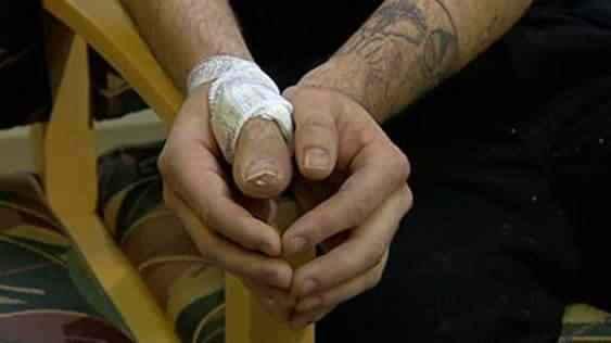 Maluco perde o polegar e os médicos resolvem implantando o dedão do pé no  lugar