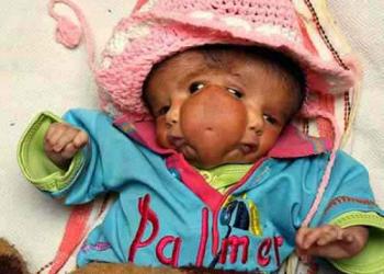Bebê com duas caras vira atração na Índia