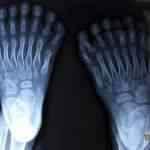 Conheça o menino que tem 16 dedos nos pés e 15 dedos nas mãos