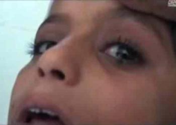 Bizarro: A menina que chora lágrimas de pedra