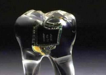 O implante teledental
