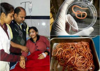 GROTESCO: Médicos retiram mais de 150 vermes do estômago de paciente na ìndia