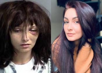 Após 19 overdoses ela se livrou do vício