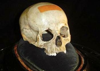 O crânio de Mozart?