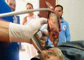 Bizarro: Pescador tinha um peixe vivo em sua garganta