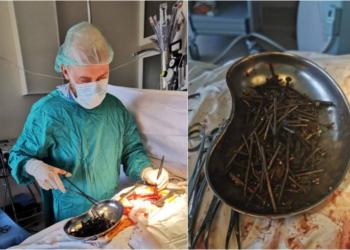 Médicos retiram mais de 1kg de parafusos e porcas do estômago de um homem